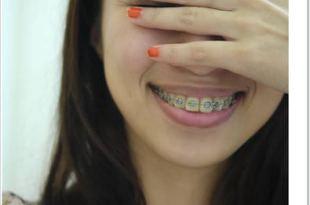 【Yaya牙套日記-第1天】就決定矯正了!牙醫診所&牙套預算篇