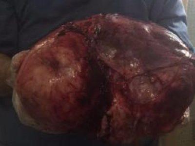 فى جراحة نادرة.. استئصال ورم يزن 13 كيلو من رحم سيدة بأسيوط
