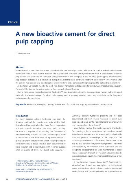 A new bioactive cement for direct pulp capping - Modern Dentistry