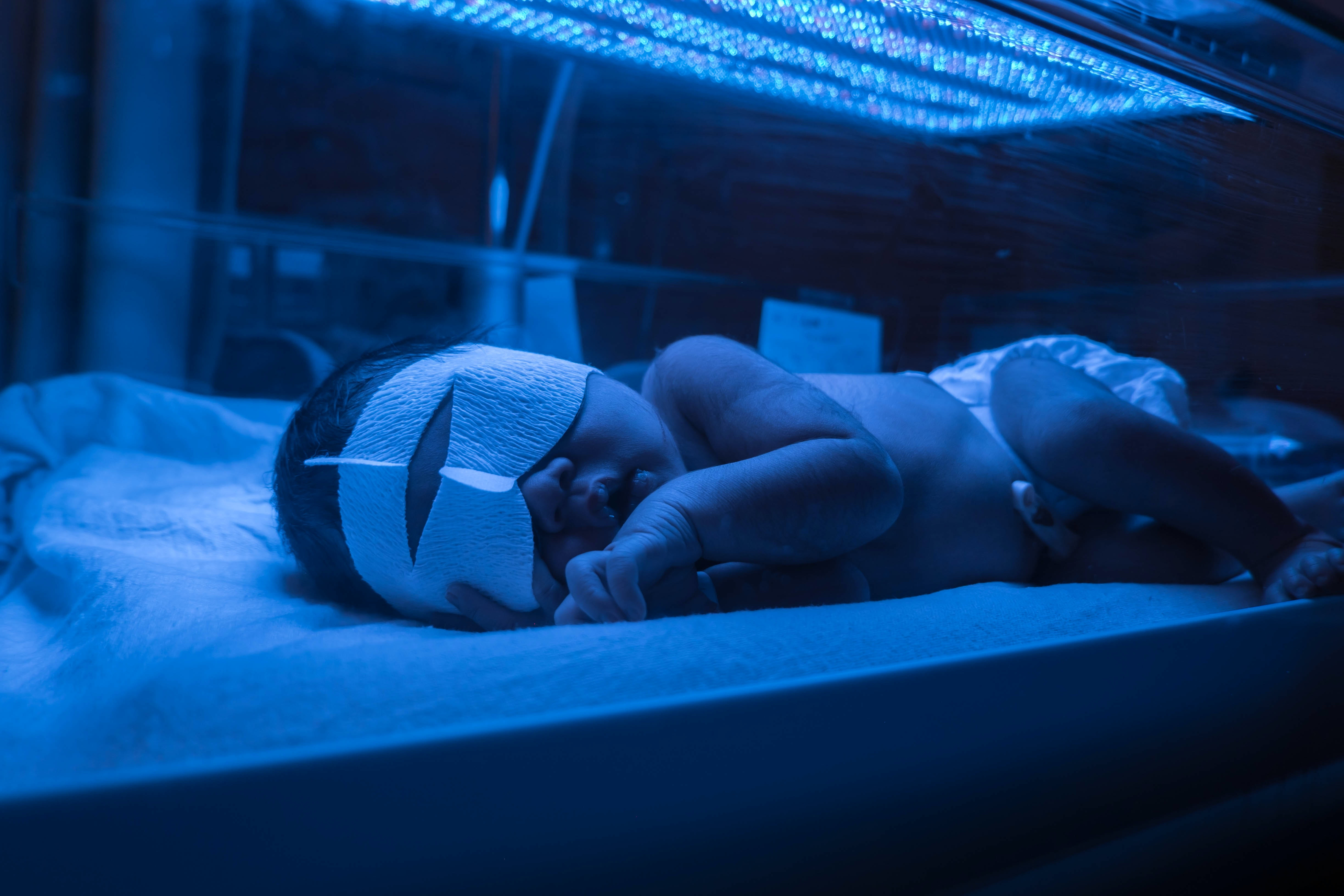 Newborn Babies Jaundice Treatment How Long Does Jaundice Last Not Every Baby Has To Stay