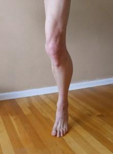 leg left 2