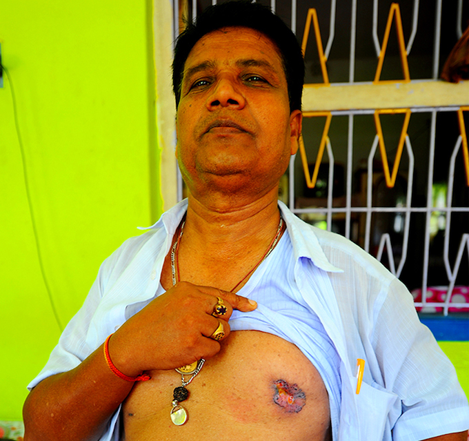 "Sunil Bagh works at the cooperative bank in Ghetugachi village of Nadia district. The 52-year-old shows a skin lesion. Doctors have told him it is a result of arsenic poisoning and may turn cancerous. ""I have lost eight relatives to arsenic poisoning,"" Bagh says. ""My father, my uncles, aunts… The doctors say my lungs are already affected. They are recommending surgery."" At Bagh's office, colleagues can quickly list around 40 relatives, friends and acquaintances who have died due to arsenic poisoning in the last ten years or so."