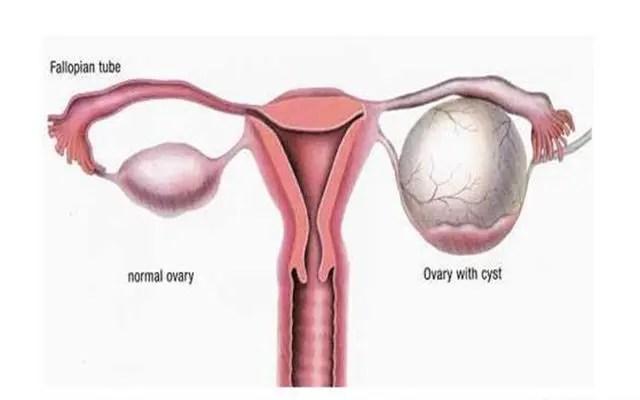 難產可怕吧,孕期這些比難產還可怕,新手媽媽更是要小心