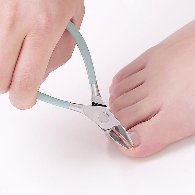 得了灰指甲不用慌,用上這幾個便宜貨,病甲脫落長出健康的新甲