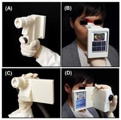 BOEx-handheld-eye-scanner-fig1-250x247