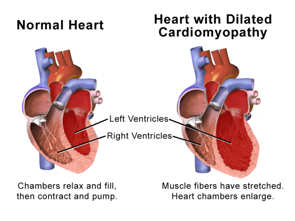 The Debate Continues: Should All Athletes Be Screened for Enlarged Hearts?