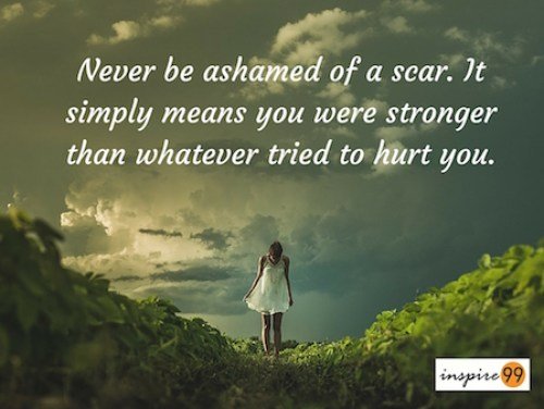 never be ashamed of a scar, scar quote, wounds of hurt, self improvement, inspire99