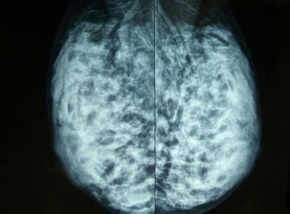 Imagem: Mamografia