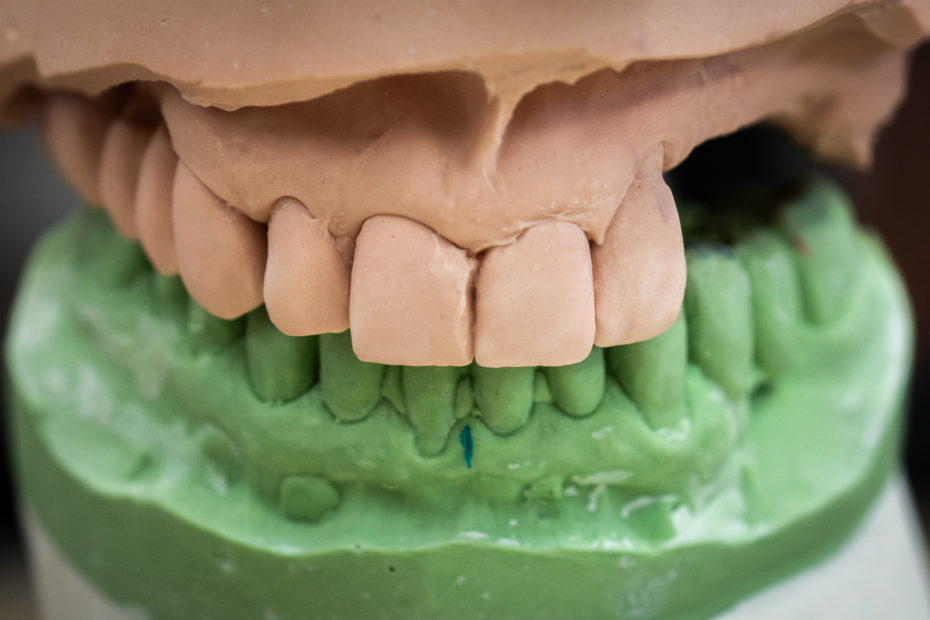 Setting Expectations and Defining the Immediate Denture