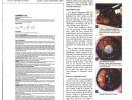 Opción para pacientes con altas dioptrias-1