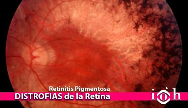 DISTROFIAS de la Retina