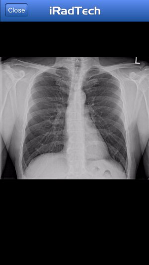 iPhone_ChestPA_Xray