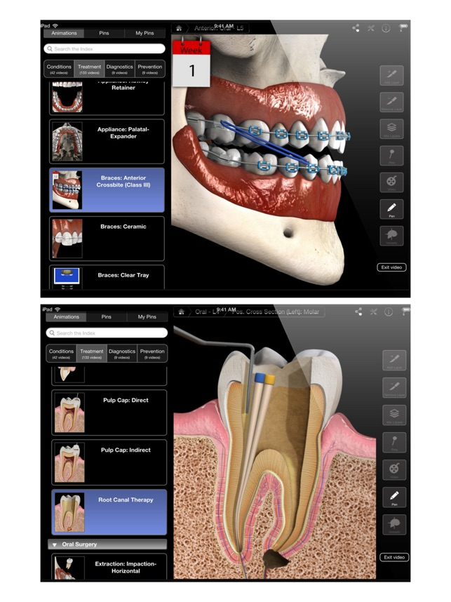 Dental Patient Education on the App Store