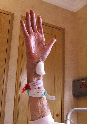 χέρι καρκίνος