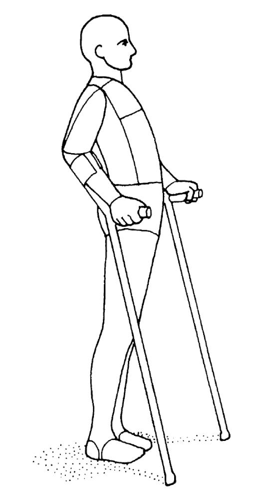腸骨大腿靱帯