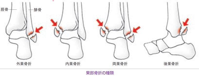 果部骨折の分類