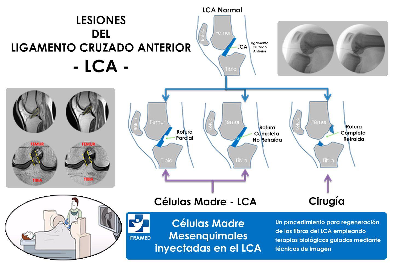 C3.1-ROTURA-LIGAMENTO-CRUZADO-ANTERIOR-ALTERNATIVAS-NO-QUIRURGICAS-1440pixels