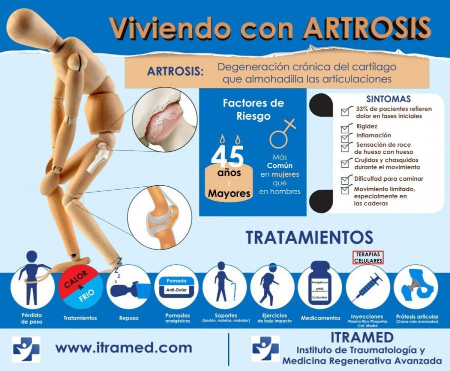 tratamiento-para-artrosis-viviendo-con-artrosis