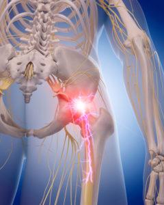 Low Back Pain, Sciatica, Sciatic Nerve Pain