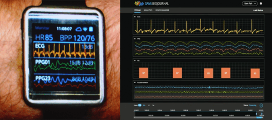 Samsung's Simband and S.A.M.I. Biojournal