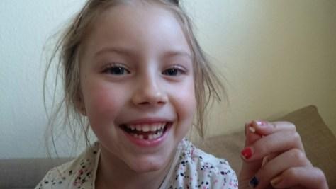 pierwszy stracony ząb