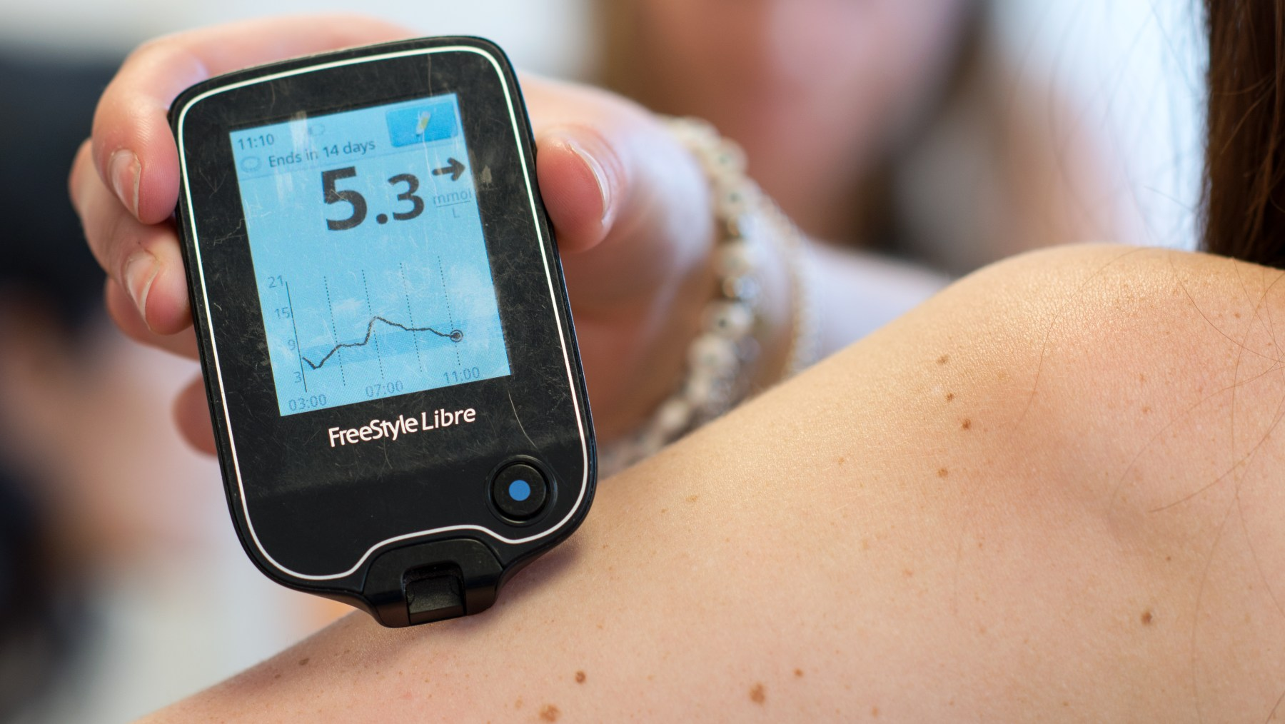 Abbott Freestyle Libre Flash Glucose Sensing Available On Nhs For Type 1 Diabetes From