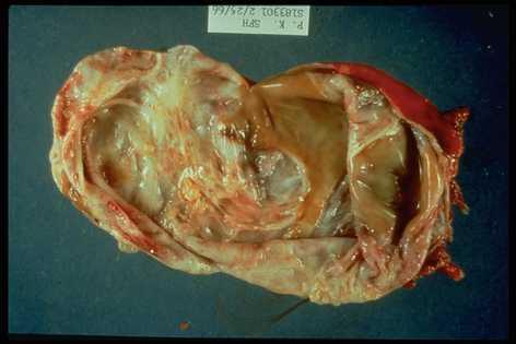 acute pancreatitis case study scribd