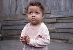 Blue Eyed child in Poor Barrio near Mercado Huembes