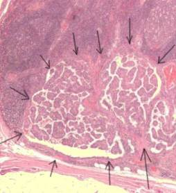 623px_Lymph_node_with_papillary_thyroid_carcinoma