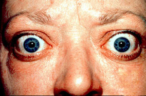 Proptosis_and_lid_retraction_from_Graves'_Disease