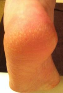 IMG 1046 203x300 Do your feet need a treat?  It's time to try Spongeables Pedi Scrub™.  #Review