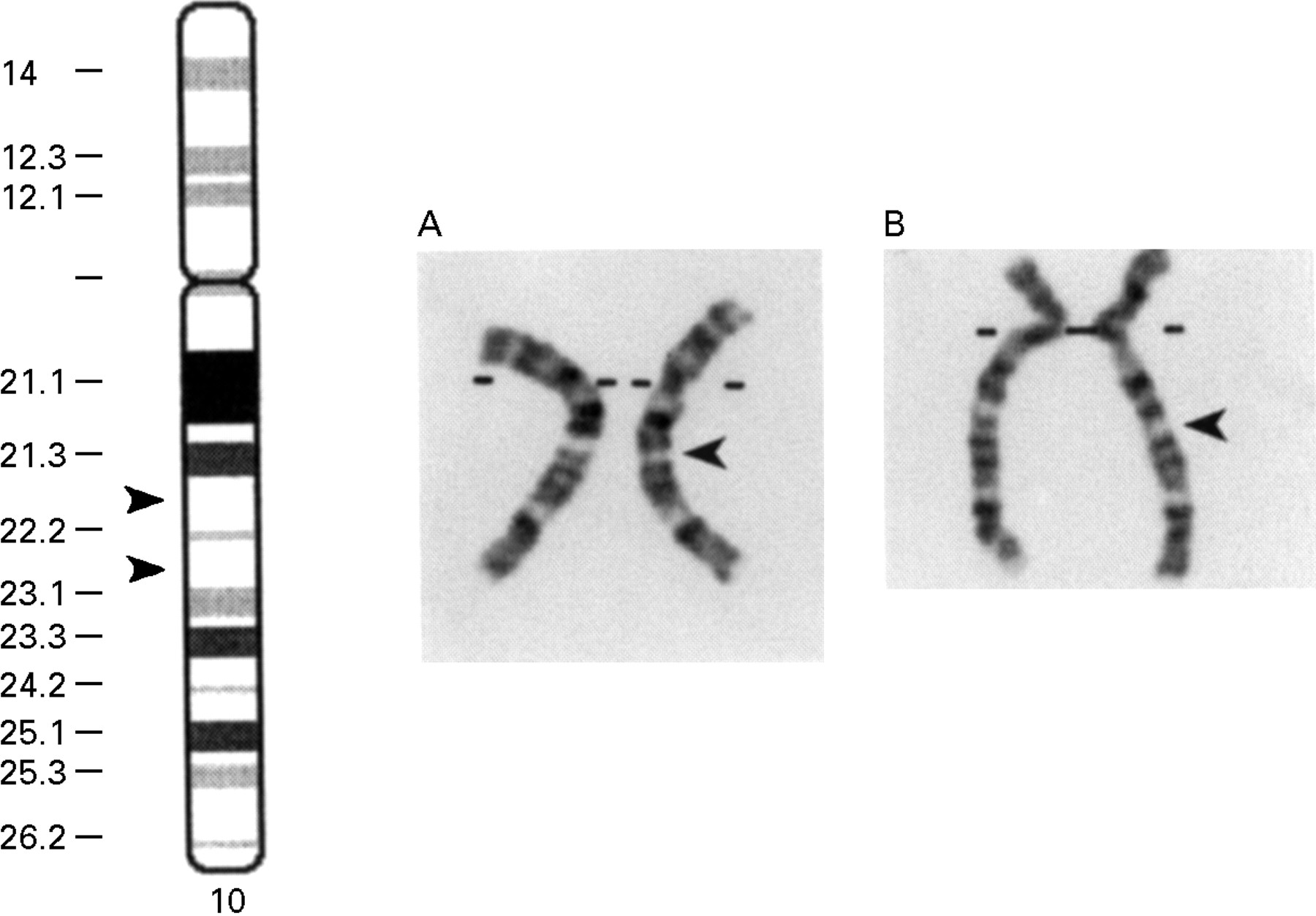 Chromosome Deletion De Novo 10q22 Interstitial Deletion Journal Of Medical