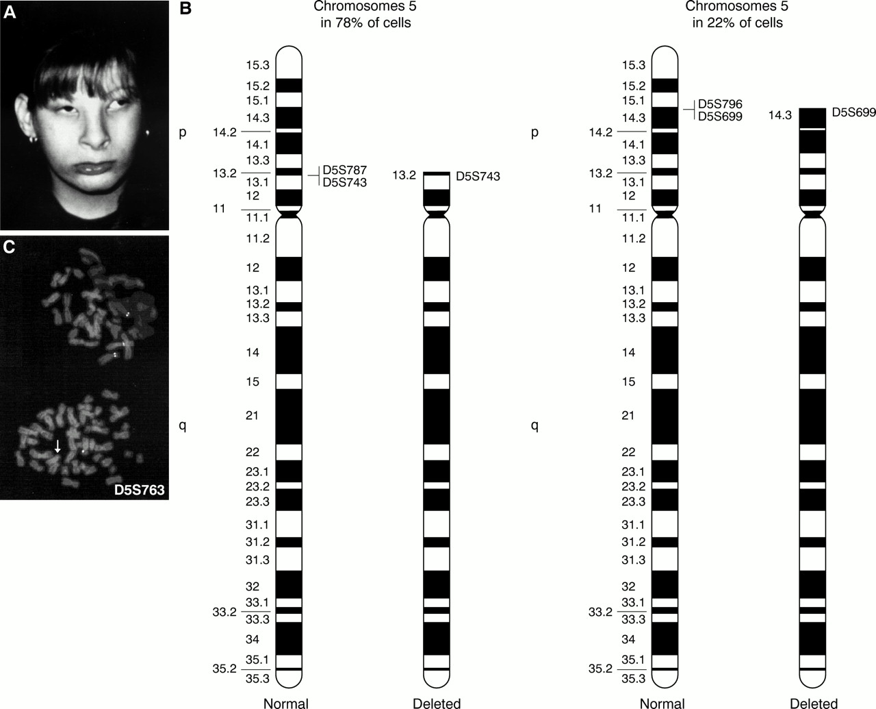 Chromosome Deletion The First Three Mosaic Cri Du Chat Syndrome Patients With