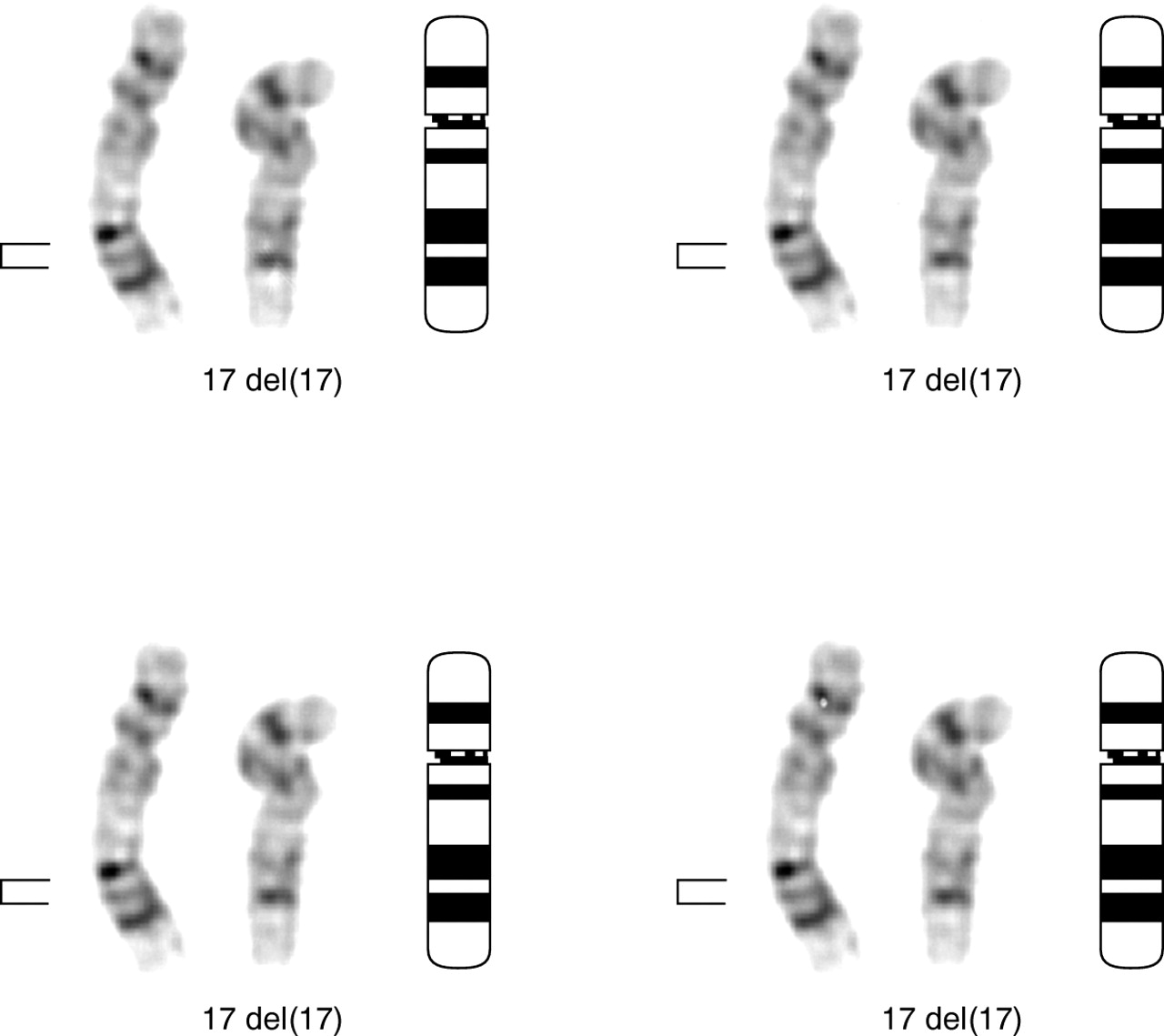 Chromosome Deletion Interstitial Deletion Of Chromosome 17 Del 17 Q22q23 3