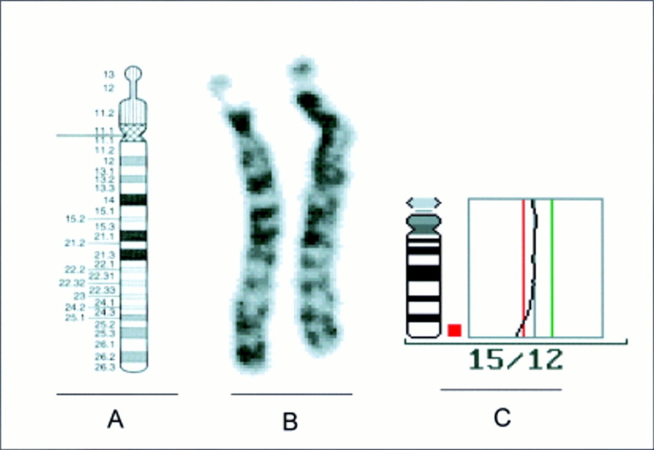 Chromosome Deletion De Novo Terminal Deletion Of Chromosome 15q26 1