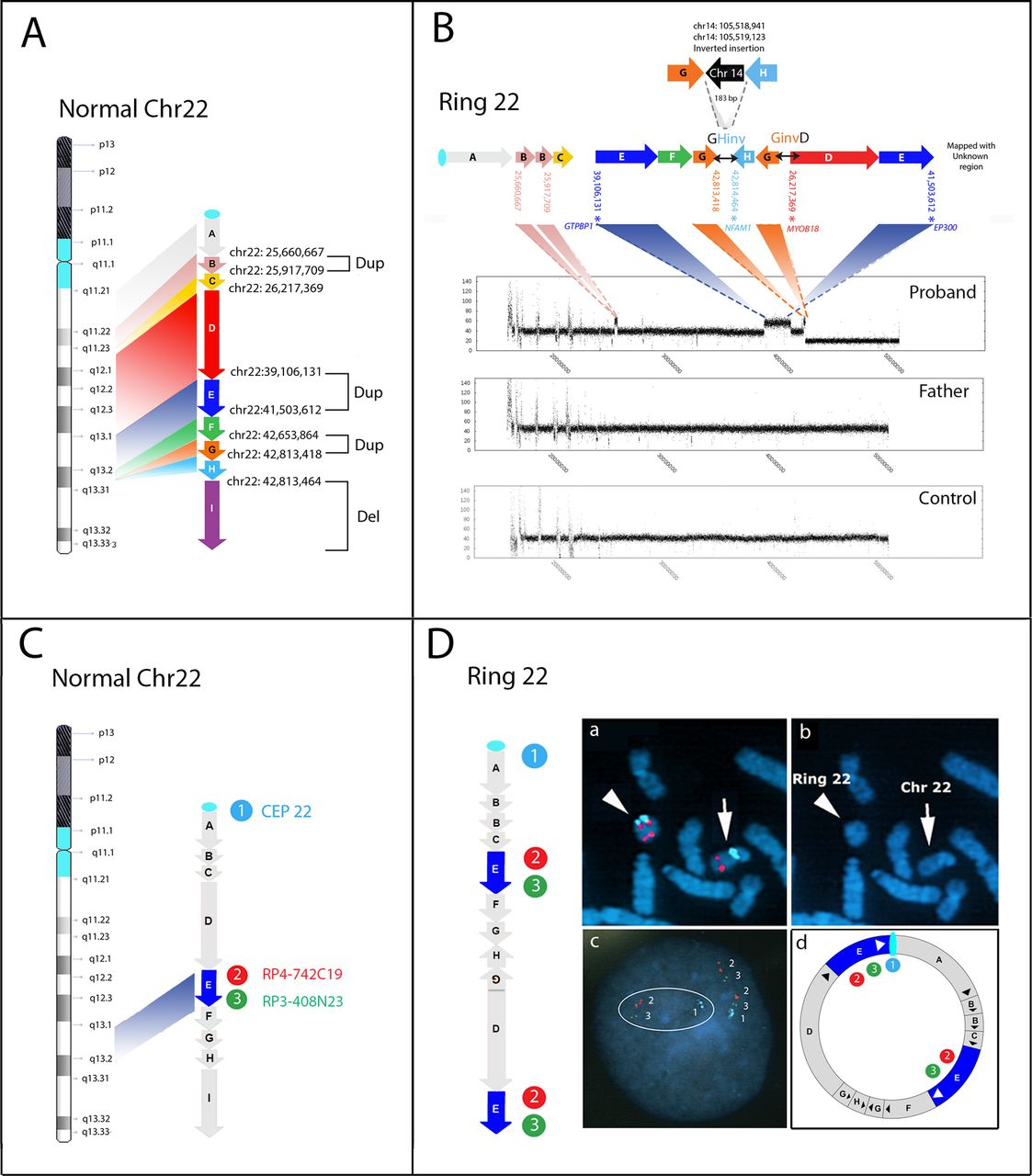 Chromosome Deletion Chromothripsis And Ring Chromosome 22 A Paradigm Of