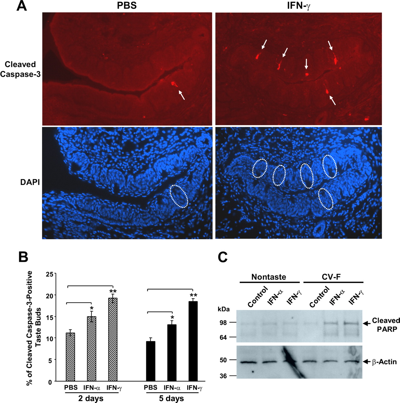 Agnes One Step Gamma Inflammation Activates The Interferon Signaling Pathways In Taste