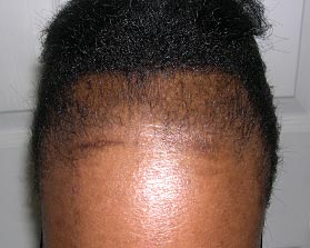 traction_alopecia