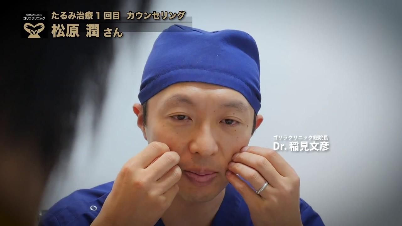 【メンズスキンケア】松原潤さん01|「男のたるみ治療」施術の流れ #スキンケア #プラセンタ #Skincare #followme