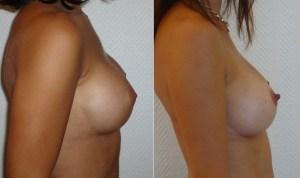 Implant-rond-versus-implant-anatomiquer (1)