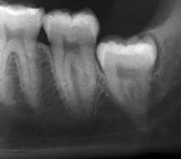 Vertical_impaction_wisdom_tooth_infection