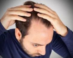Hair Restoration - Permanent Hair loss Solutions