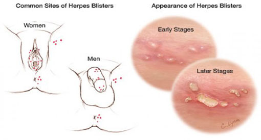 Herpes Simplex | What causes Type 1 or Type 2?