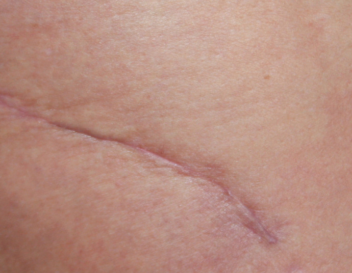 Laser Narbe The Effect Of Scars On Your Health And Body.