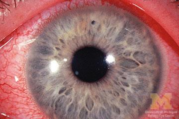 Corneal Foreign Body Eye Trauma The Eyes Have It