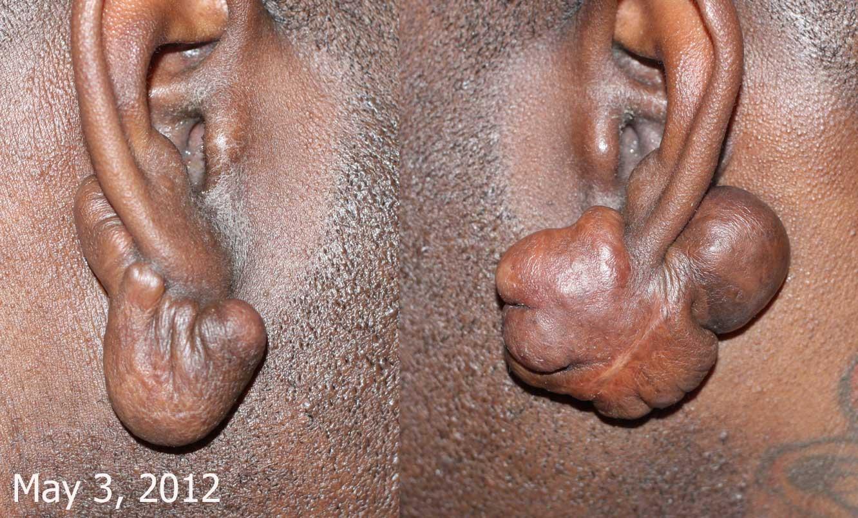 Challenging ear keloids