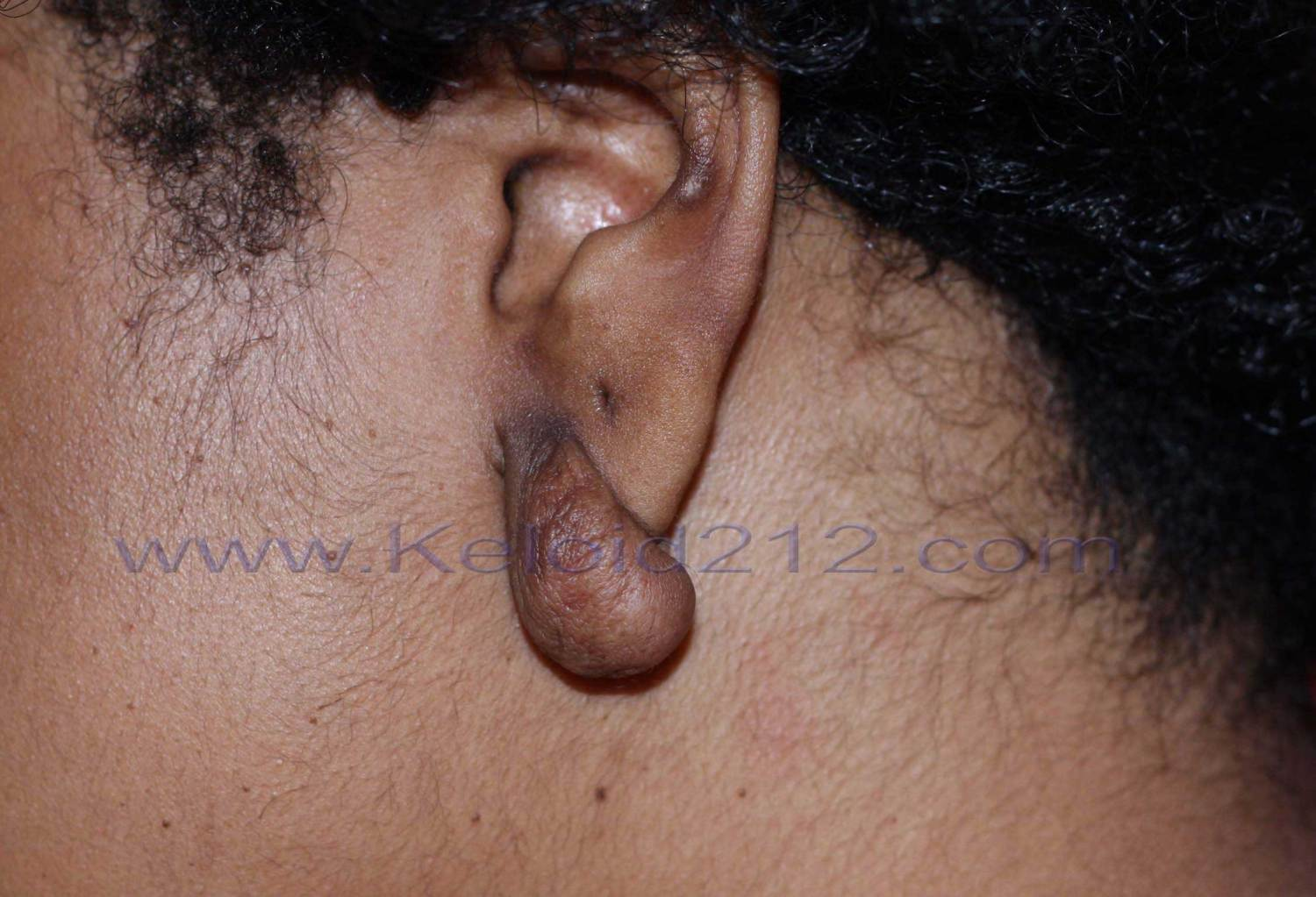 Earlobe Keloids Treatment