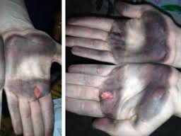 These are two of the hands that will be whole again in a week or two. courtesy theindychannel.com