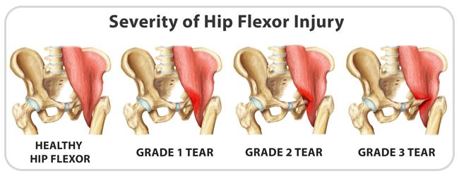 Pictures of Hip Flexor Muscles Diagram - kidskunstinfo
