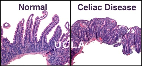 If you have Celiac Disease, gluten damages your intestines. Celiac disease UCLA Division of Digestive Diseases, Celiac Disease Division  http://gastro.ucla.edu/body.cfm?id=20